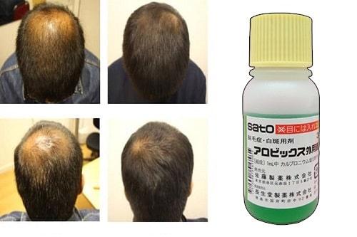 Thuốc mọc tóc Sato có tốt không-3